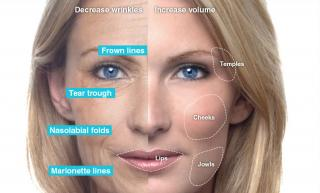 Fillers for wrinkles
