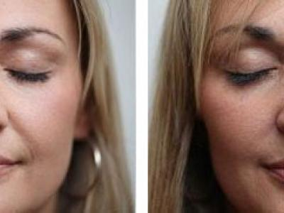 crooked nose treatment